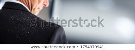 Dandruff On Businessperson's Shoulder Stock photo © AndreyPopov