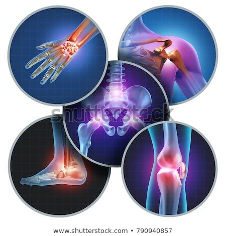 humanismo · joelho · dor · anatomia · esqueleto · em - foto stock © lightsource