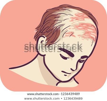 Homme symptôme cuir chevelu illustration médicaux rouge Photo stock © lenm
