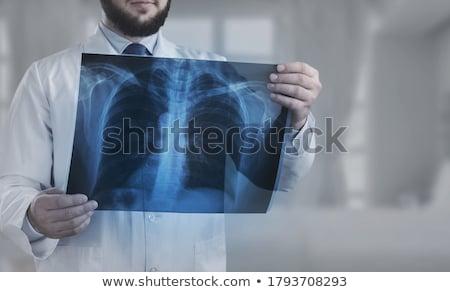Wirbelsäule · Bruch · Wirbelsäule · Verletzungen · medizinischen · Anatomie · des · Menschen - stock foto © lightsource