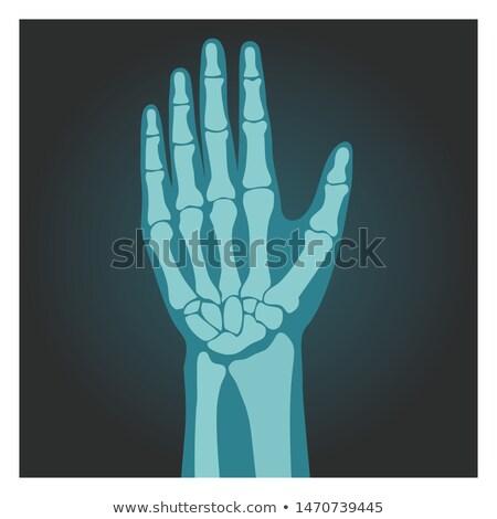 Xray tiro muñeca humanos cuerpo huesos Foto stock © MarySan