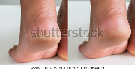 высушите кожи каблуки женщины ног ног Сток-фото © Traimak