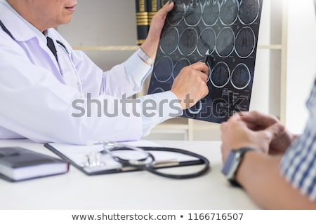 doctor analyzing a scan or x-ray film or explains a CT scan thou Stock photo © snowing