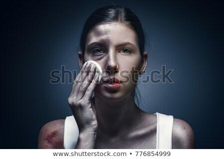 vrouw · huid · kneuzing · groot · been - stockfoto © smithore
