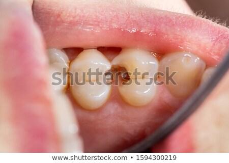 diente · cavidad · símbolo · médicos · sección · transversal - foto stock © Lightsource