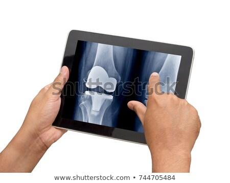 остеопороз отображения медицинской таблетка диагностика черный Сток-фото © tashatuvango