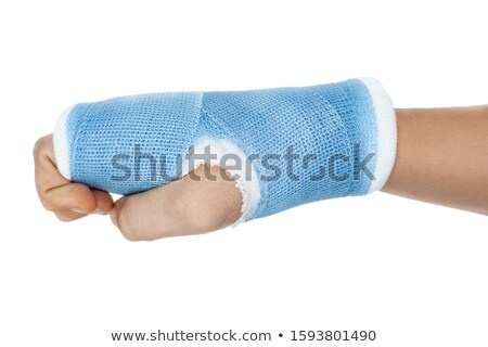 Stock photo: Blue cast on hand and arm isolated on white background