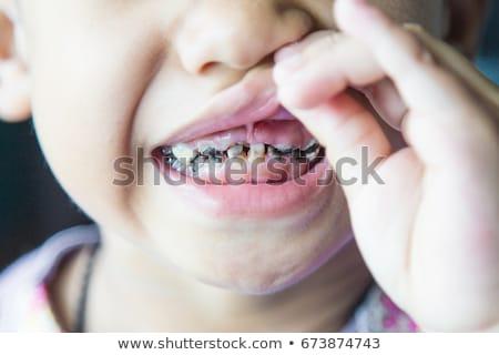 close up shot of baby teeth with caries Stock photo © galitskaya