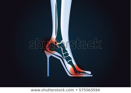 Foot In A Red Shoe Diagram Stock photo © shawlinmohd