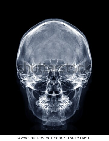 human skull front view stock photo © pixelchaos