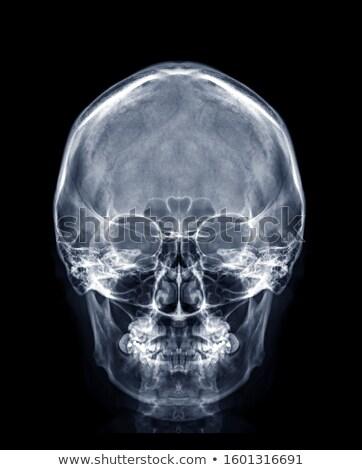 Emberi koponya elöl kilátás részletes helyes Stock fotó © Pixelchaos