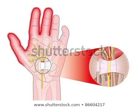 手 · ラジオ · トンネル · 手術 · 指 · 外科医 - ストックフォト © alexonline