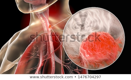 esophageal cancer diagnosis medical concept stock photo © tashatuvango