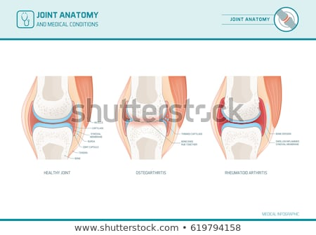 Stock photo: Osteoarthritis and normal joint anatomy