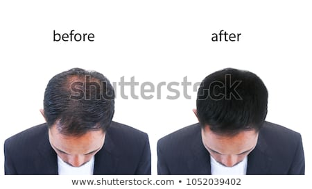 old bald businessman stock photo © Giulio_Fornasar
