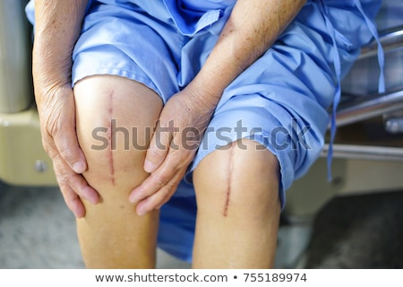 Knee Replacement Staples Stock photo © piedmontphoto