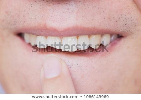зубов · анатомии · кровь · здоровья · рот · зубов - Сток-фото © lightsource