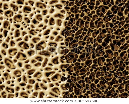 Bone With Osteoperosis Stock photo © Lightsource