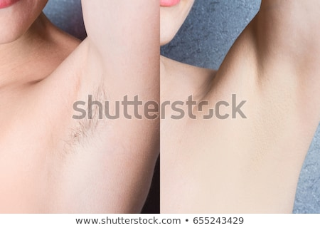Before And After Concept Of Underarm Hair Removal Stock photo © AndreyPopov