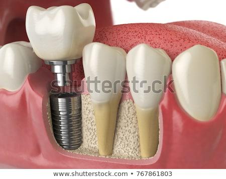 стоматологических · имплантат · корона · иллюстрация · череп · черный - Сток-фото © tefi