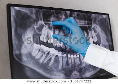 Tandarts onderzoeken tanden Xray computer vrouwelijke Stockfoto © AndreyPopov