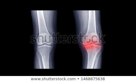 Shocked Doctor Examining Knee X-ray Stock photo © AndreyPopov