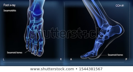 Bone X-ray Image Of Human Joints Orthopedic Vector Stock photo © pikepicture