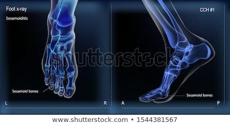 saudável · osso · quebrado · osteoporose · branco · dor - foto stock © pikepicture