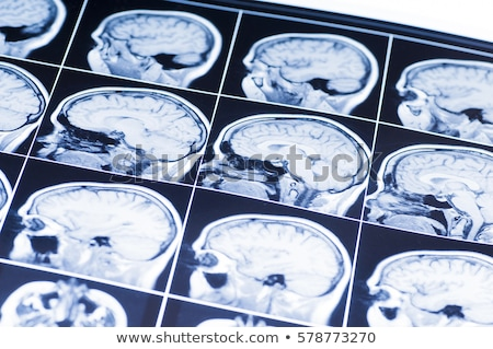 Brain injury Stock photo © Lightsource