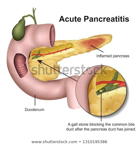 Diagnosis - Pancreatitis. Medicine Concept. 3D Illustration. Stock photo © tashatuvango