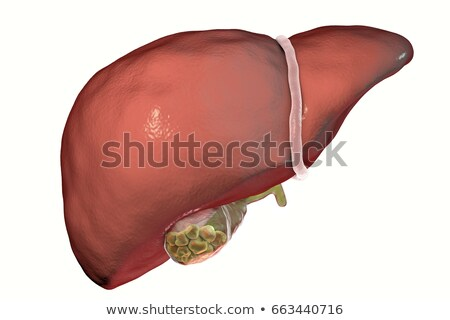 Gallstones in the Gallbladder stock photo © Tefi