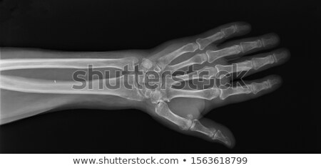 Hand and wrist radiography Stock photo © ldambies