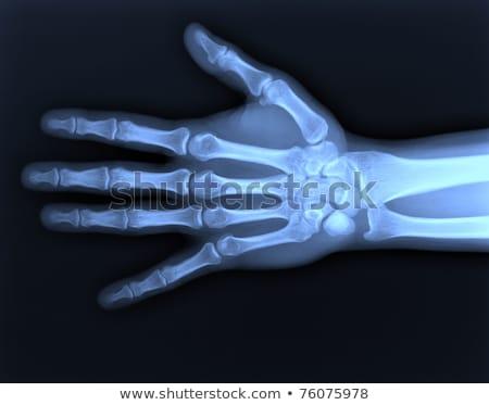 手 · 手首 · X線 · フロント · サイド - ストックフォト © ldambies