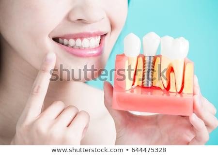 歯科 インプラント 抽象的な 水色 健康 背景 ストックフォト © Tefi