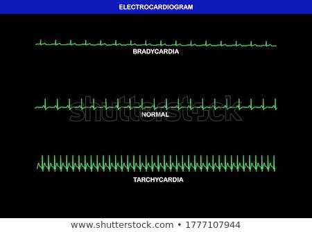 быстро · нормальный · замедлять · сердцебиение · иллюстрация · медицина - Сток-фото © lightsource