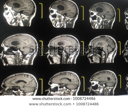 Brain and blurry Skull Stock photo © Klinker