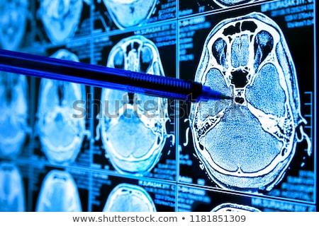 asztma · kirakat · orvosi · tabletta · fekete · sztetoszkóp - stock fotó © tashatuvango
