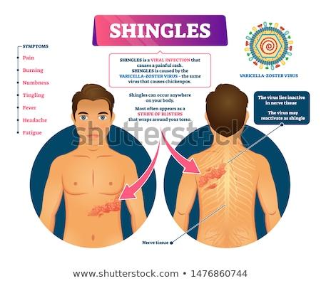 Shingles Disease Stock photo © Lightsource
