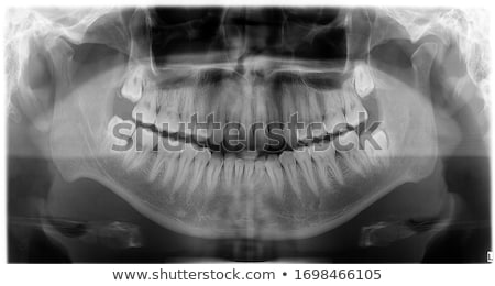 X-rays of the jaw and teeth Stock photo © boggy