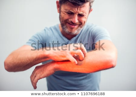 Man Suffering From Itching Stock photo © AndreyPopov