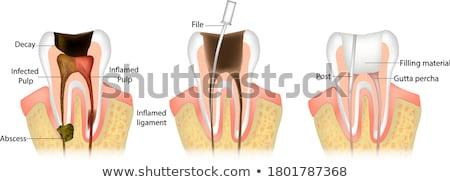 歯科 歯 健康 問題 歯科 暗い ストックフォト © Tefi