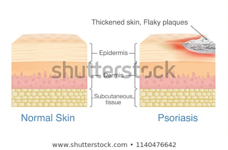 Human Anatomy of Plaque Psoriasis Stock photo © bluering