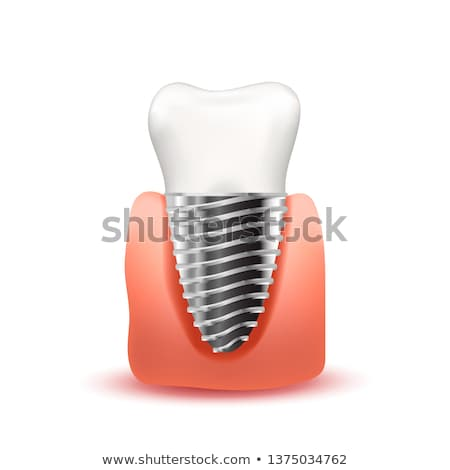 Realistic tooth implant with metallic screw in pink gum isolated on white Stock photo © evgeny89