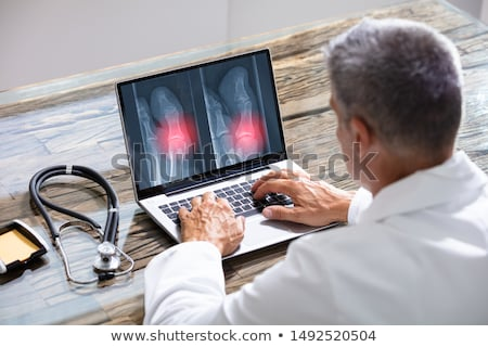doctor looking at feet x ray on laptop stock photo © andreypopov