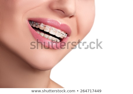 tooth brackets transparent braces  stock photo © mady70