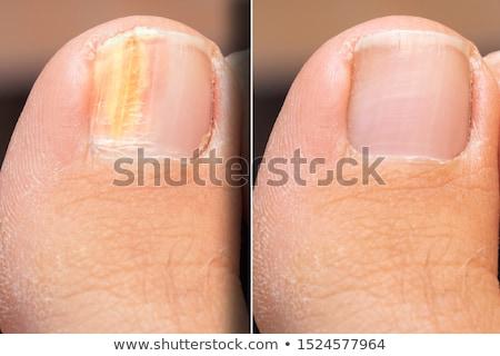 Close-up Of Sore Toe Nail Stock photo © AndreyPopov