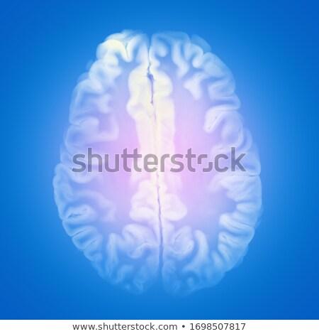 Diagnose medische 3d render selectieve aandacht pillen spuit Stockfoto © tashatuvango