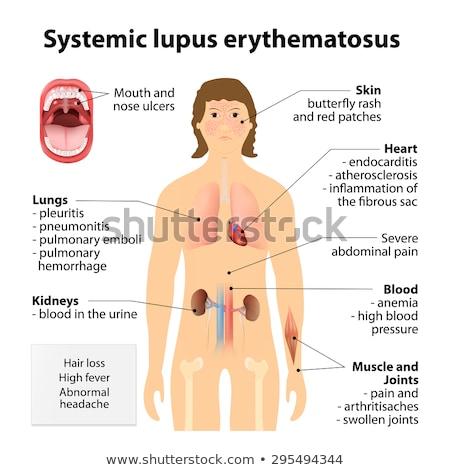 human anatomy symptoms of lupus erythematosus stock photo © bluering