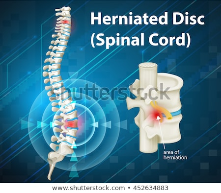 Diagram showing herniated disc in human Stock photo © bluering