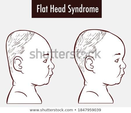Gyerek fiú tünet hát fej illusztráció Stock fotó © lenm